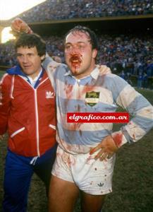 Diego Cash, dando muestra de la batalla, con su nariz rota - Rugby -  - Selección Argentina de Rugby -